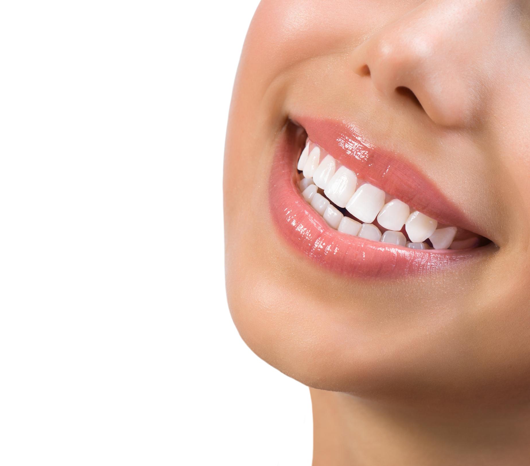 5 remedii care te ajuta sa-ti albesti dintii usor